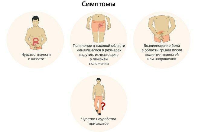 бедренная грыжа, симптомы