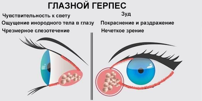 глазной герпес симптомы