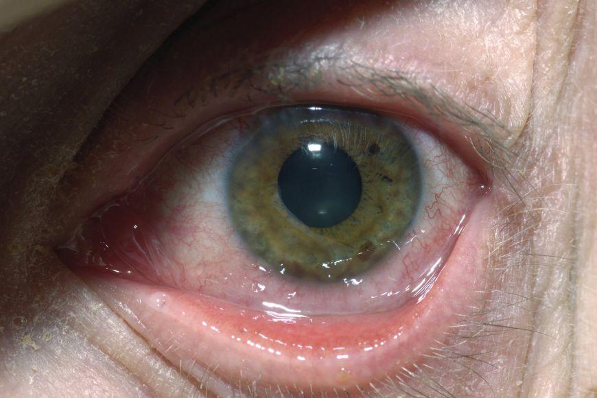симптомы герпеса на глазу
