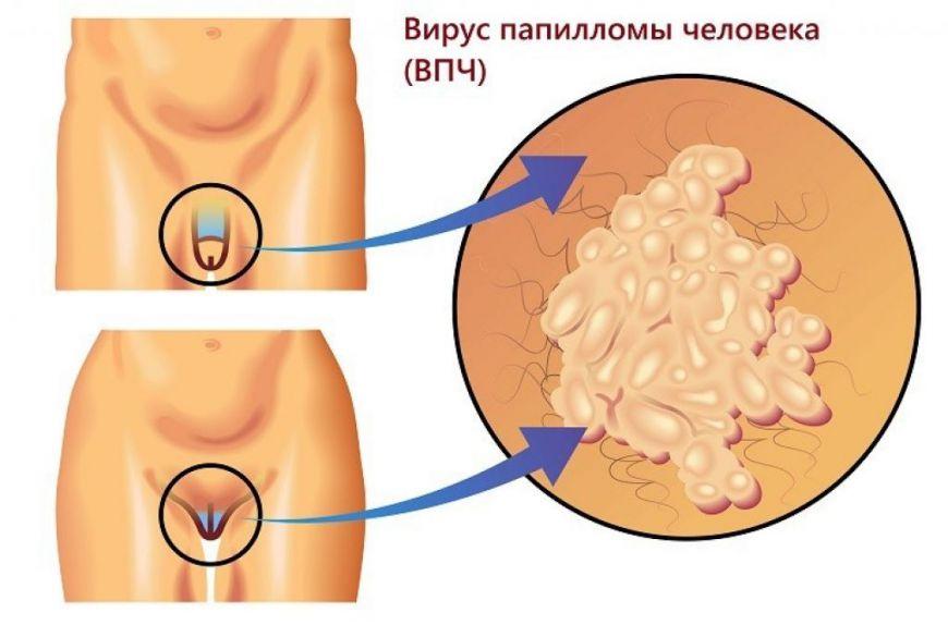 вирус папилломы человека, кандилома, генитальные бородавки