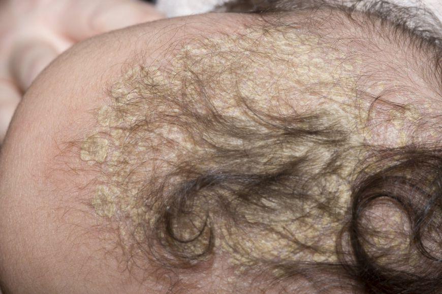 себорейный дерматит у младенца на голове