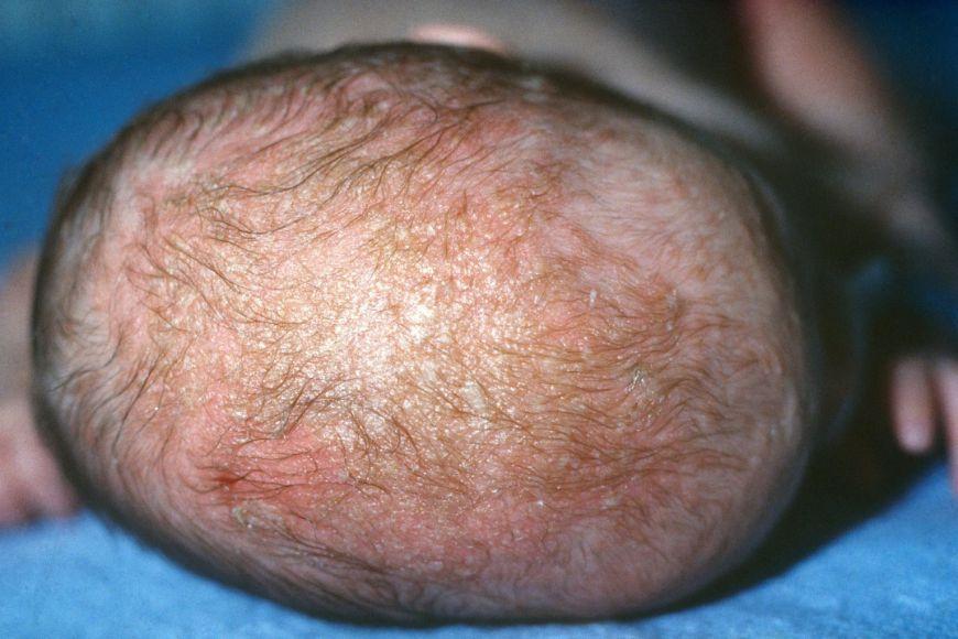 себорейный дерматит у младенца на голове шелушение, кожа красная