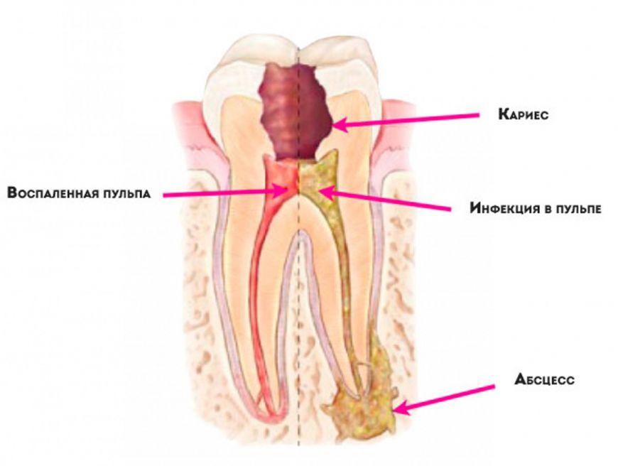 воспаленная инфицированная пульпа, абсцесс зуба