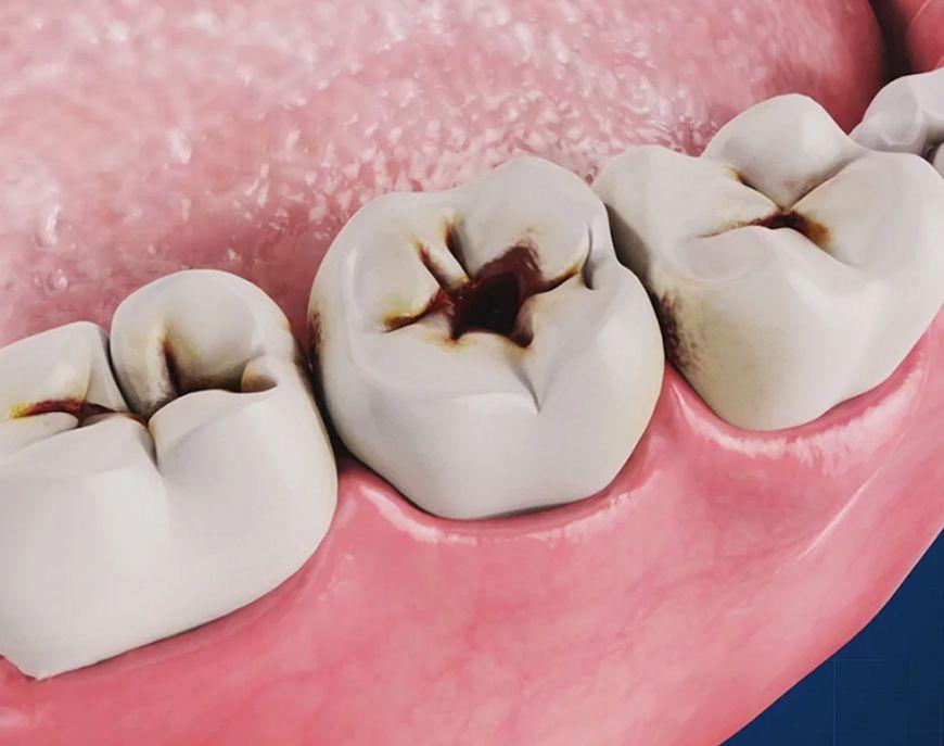 симптомы кариеса зубов