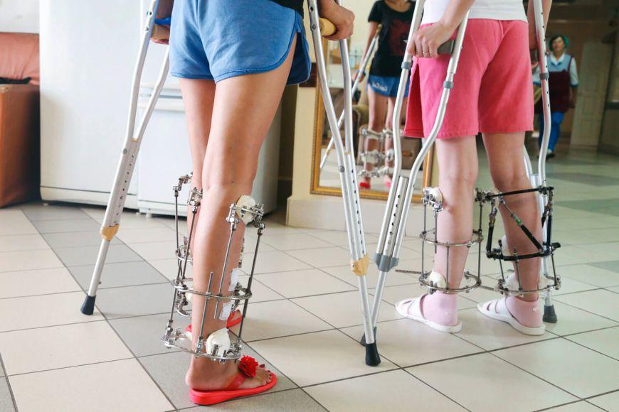 удлинение ног, после операции