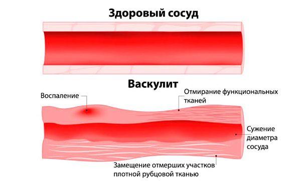 васкулит, сравнение со здоровым сосудом