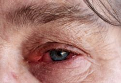 Ревматоидный артрит покраснение глаз фото